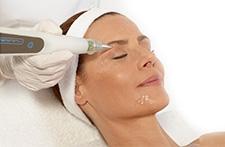 Straffung und Verjüngung der Haut durch Plasma-Behandlung