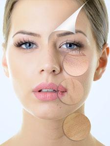 Bio Face Lifting - Bei kleine Fältchen und Hautflecken